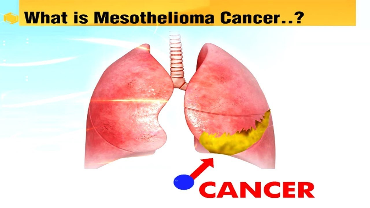 aggressive cancer meaning in telugu detoxifierea antidoturilor