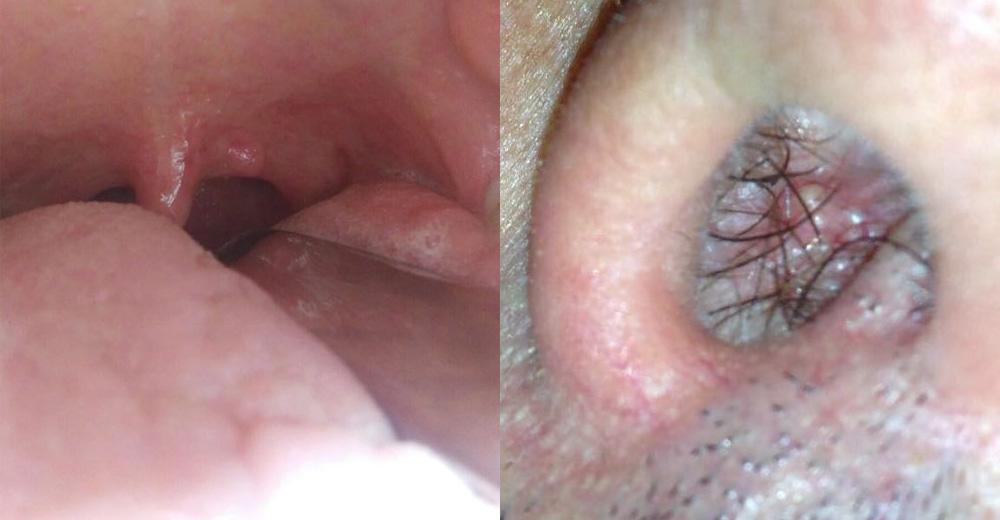 papilloma sotto la lingua