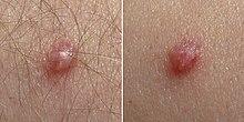 Meaning of papilloma in marathi. Wart treatment molluscum, Human papillomavirus in marathi