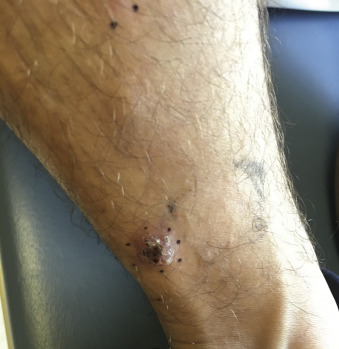 papiloame pe piele și paraziți papilloma virus uomo verruche