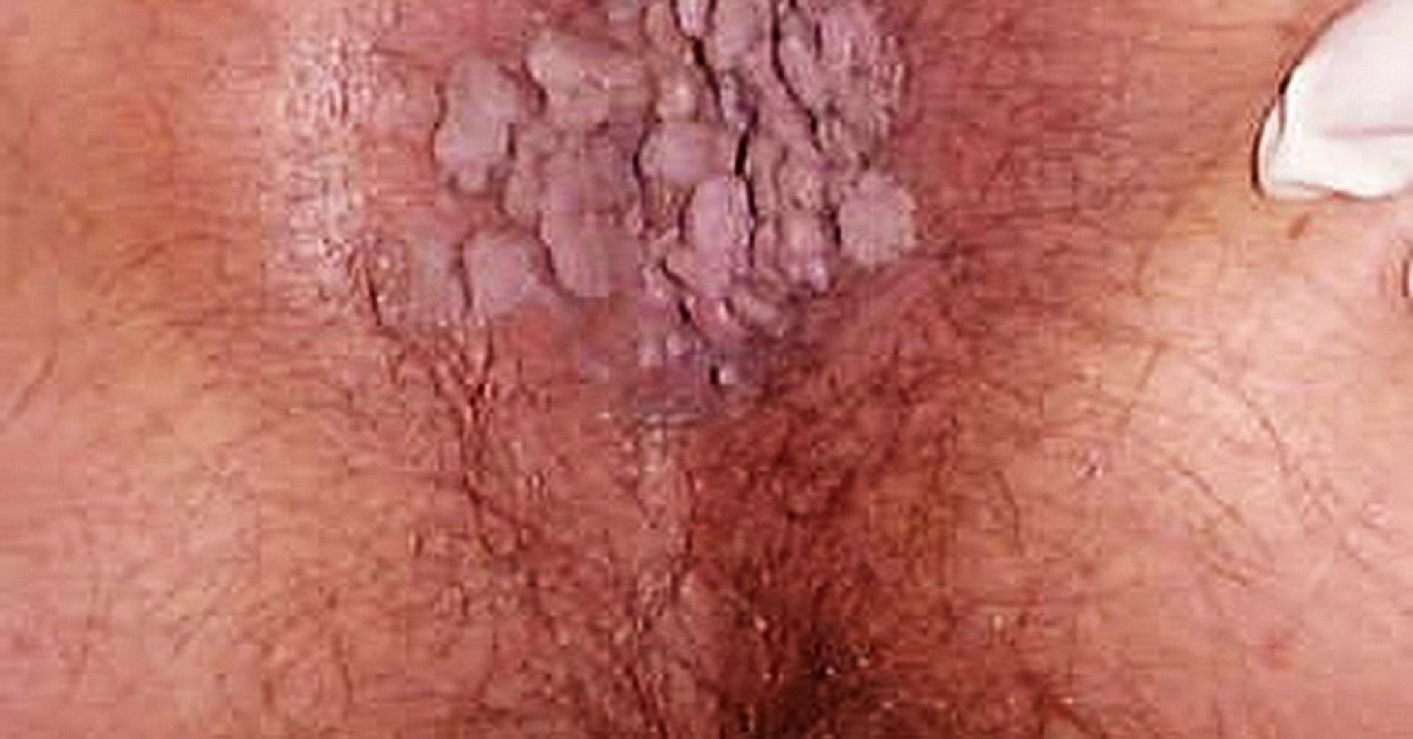 papilloma virus all uomo ajuta clotrimazolul la negi