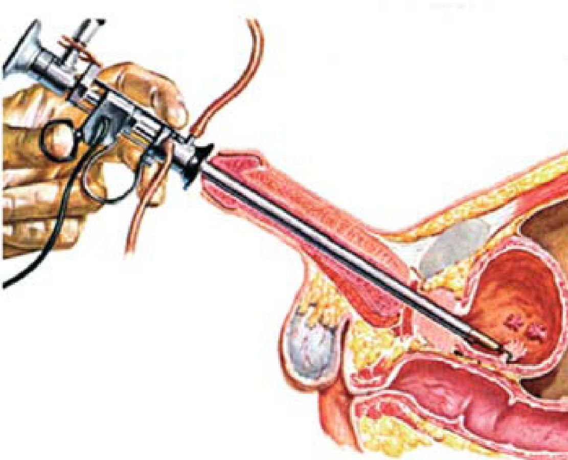 papilloma vescicale benigno sintomi