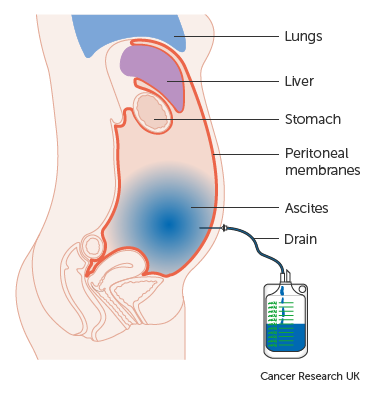 peritoneal cancer liver hpv treatment males