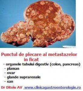 Cum se tratează metastazele cerebrale?   NeuroCentrum