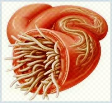 cancer endometrial ovarian pentru paraziți și vectori