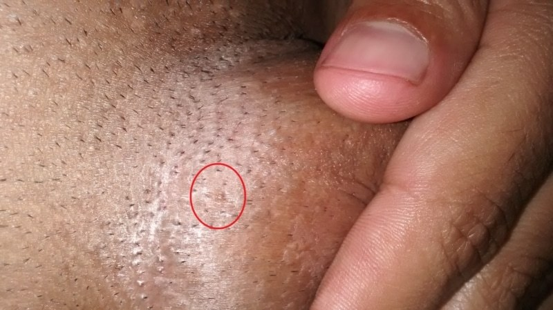 cum ai vindecat negii genitali