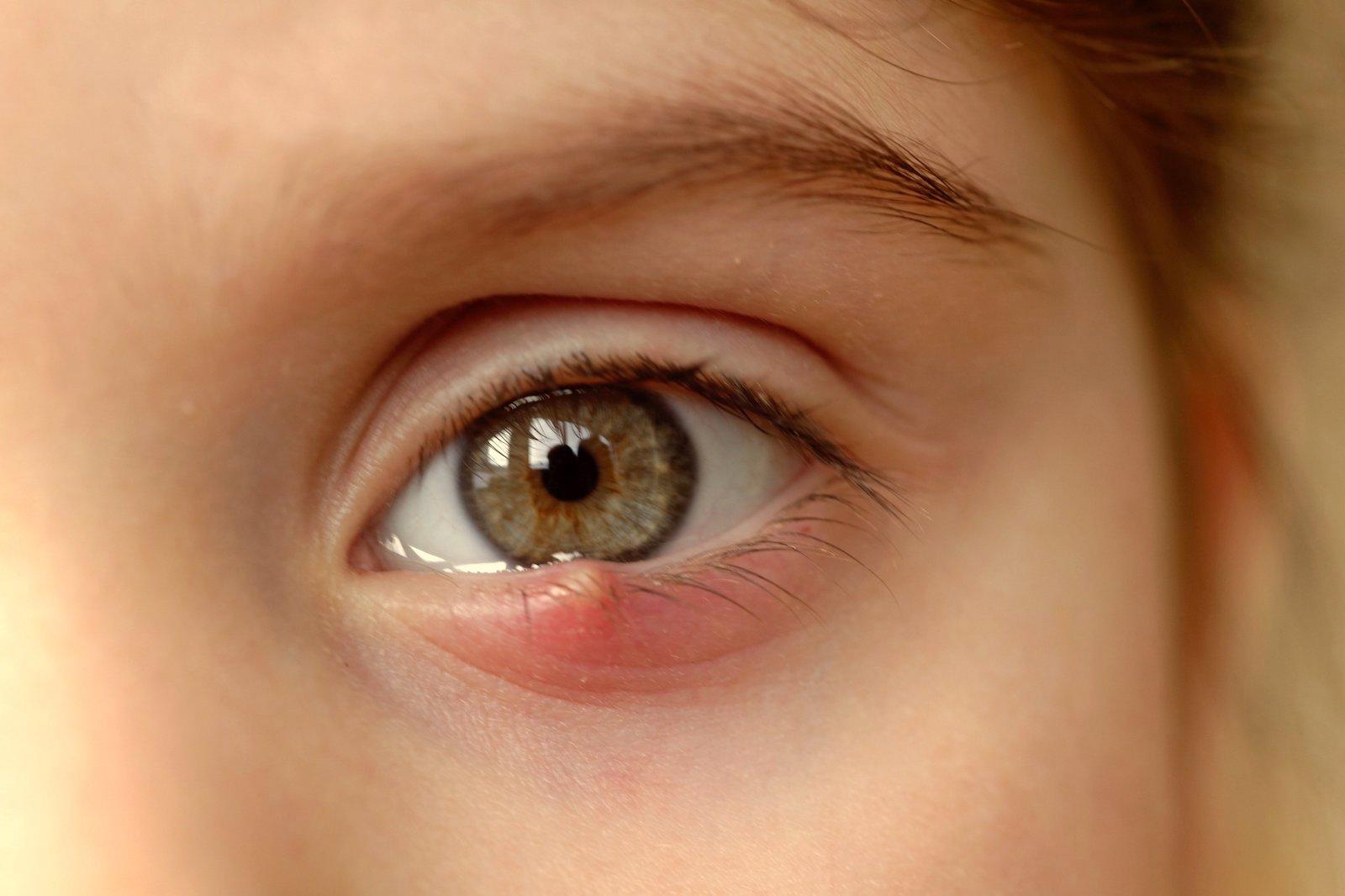Probleme de sănătate: ochii apoși