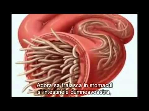tratament psoriazis helmintic