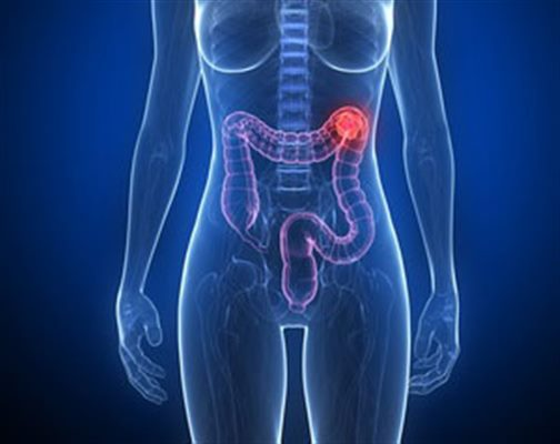 cancer colorectal douleur