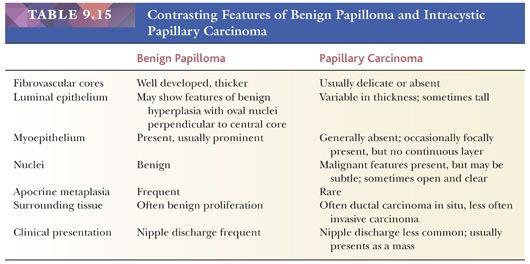 papilloma vs neoplasm que es que es papiloma