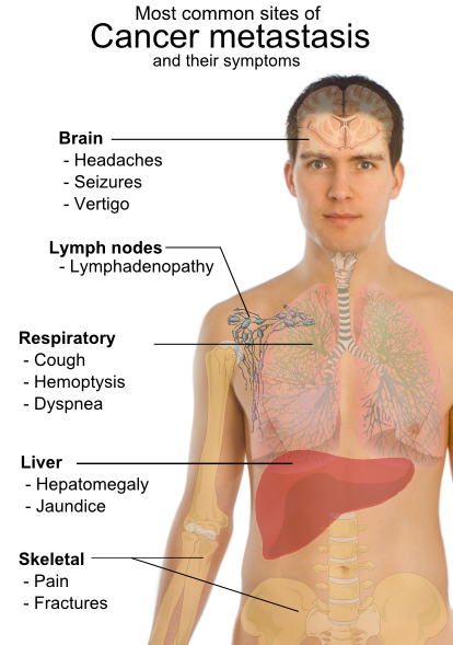 cancer in metastaza simptome)