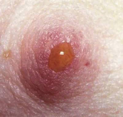 papillomavirus est il transmissible a l homme dacă eliminați papilomele de pe față