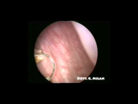 papilloma vescica intervento