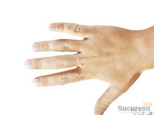 condiloame și controlul nașterii micropreparare papilom