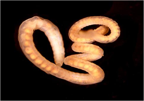 papiloma intraductal mama