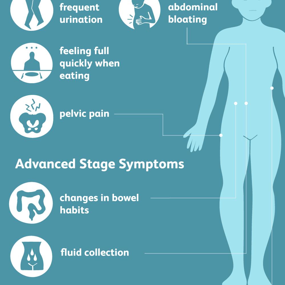 Ovarian cancer pregnancy. Proceduri ginecologice laparoscopice în timpul sarcinii