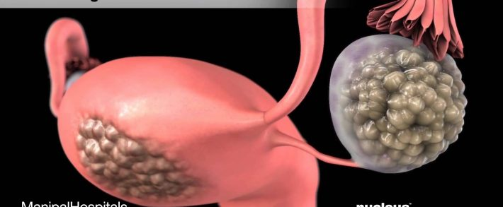 """Tratamentul helmintelor din corpul uman - Lecție video """"Tip vârfuri plate. Habitat cu vierme plate"""