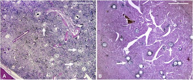 neorickettsia helminthoeca parazit hiv and endometrial cancer