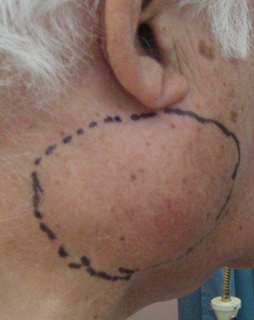 hpv swollen neck lymph nodes