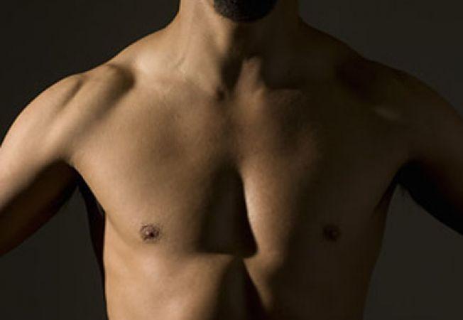 simptome cancer mamar la barbati papilomul cauzează apariția la femeile tratate