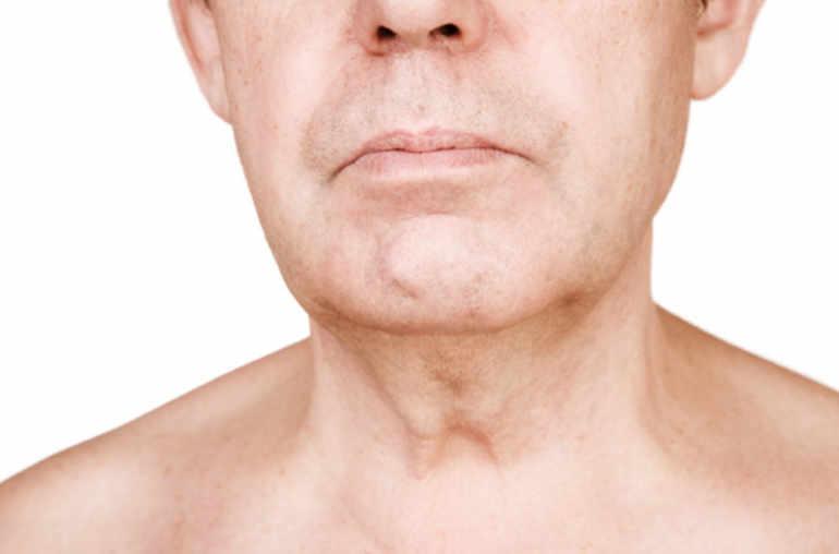 Papillomavirus traitement gorge