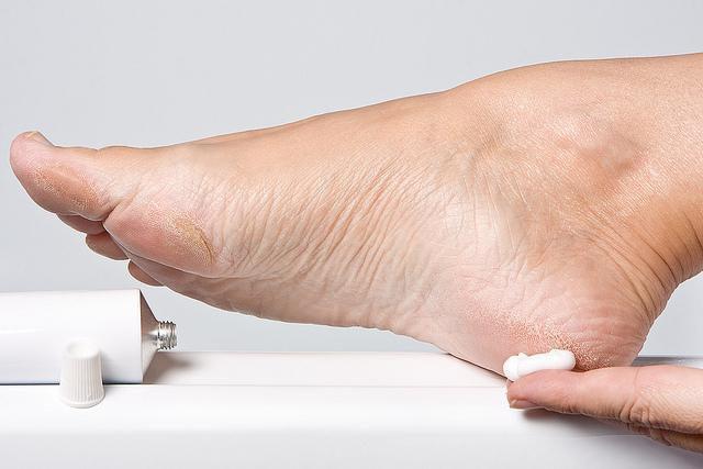 cornuri între tratamentul degetelor de la picioare bacterii daunatoare