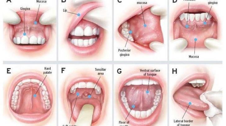 cancer faringian simptome de ce cresc papilomele pe pleoape