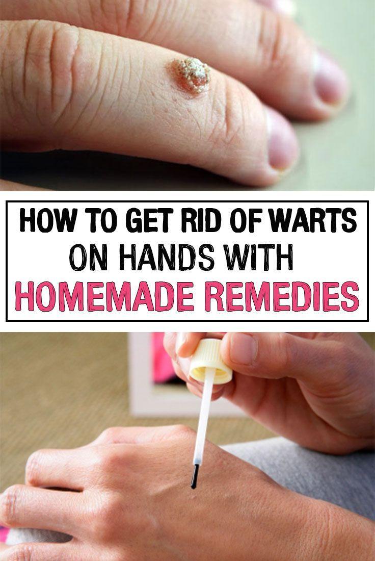 warts on hands and fingers Antibioticele funcționează pe paraziți?