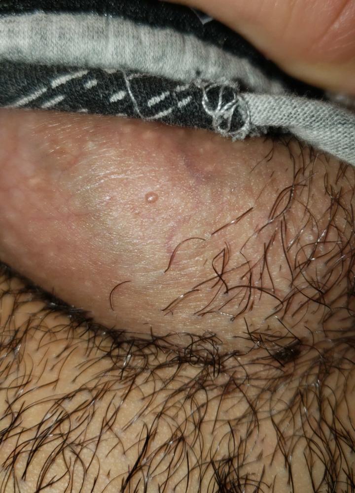 coagularea chimică a verucilor genitale ce este simptomele infecției giardiei la adulți