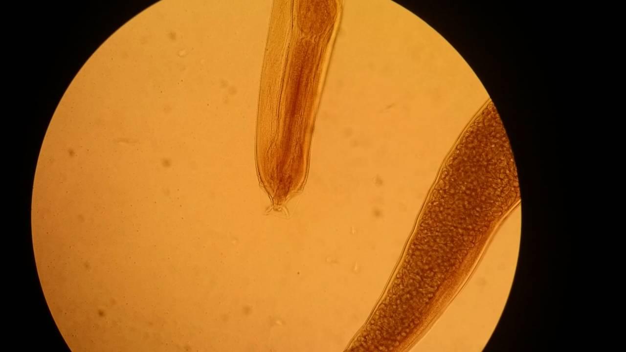 vindecă viermi și viermi condiloame în gura căii de infecție