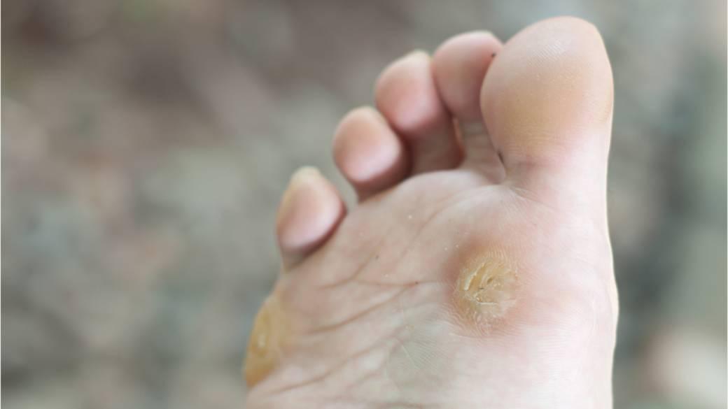 foot wart nerve pain