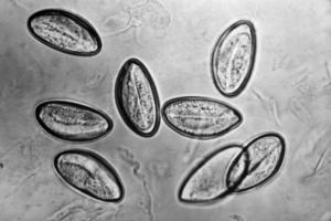 oxiuros vermiculares que es cancer fase 4