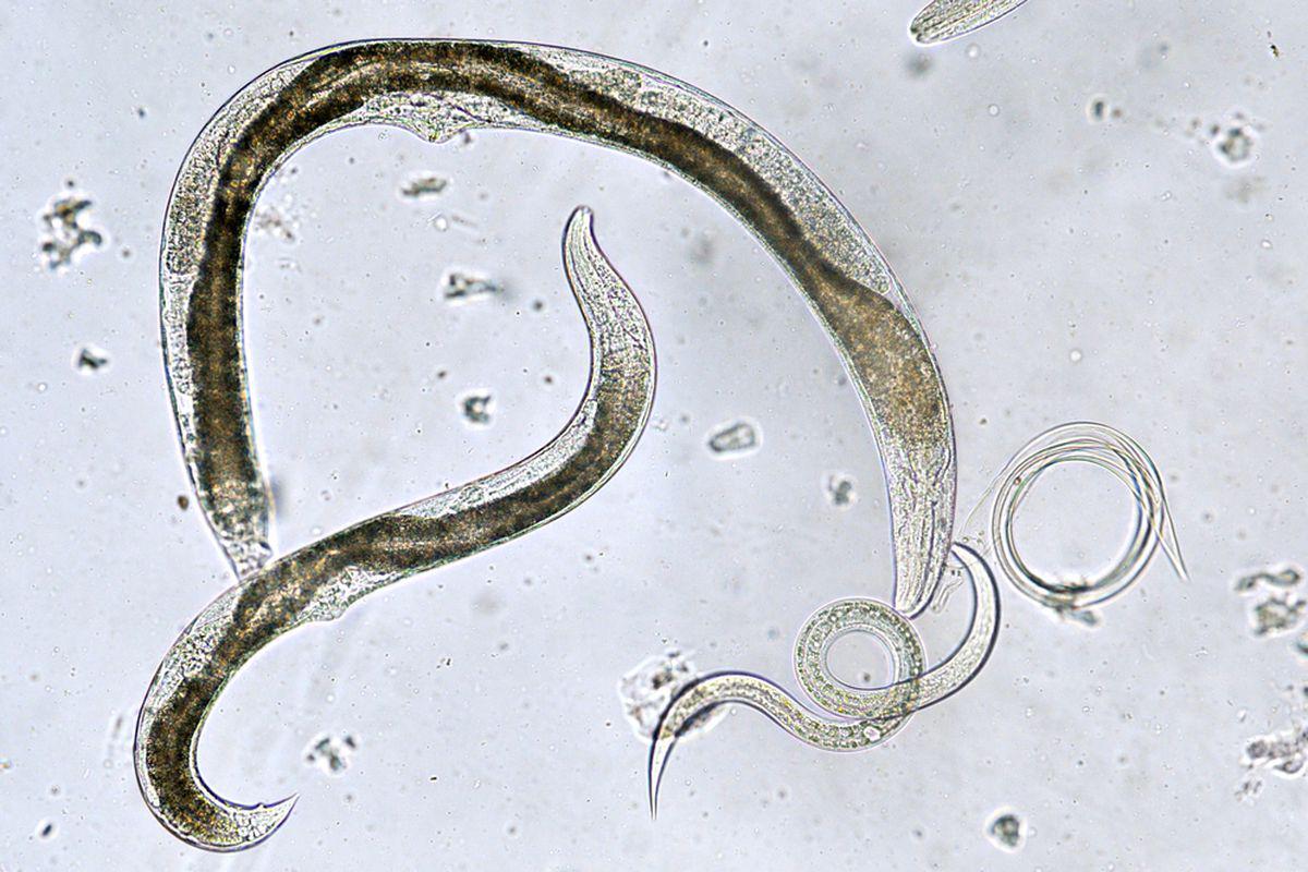 condilom acuminat vezi clinica îndepărtarea verucilor genitale