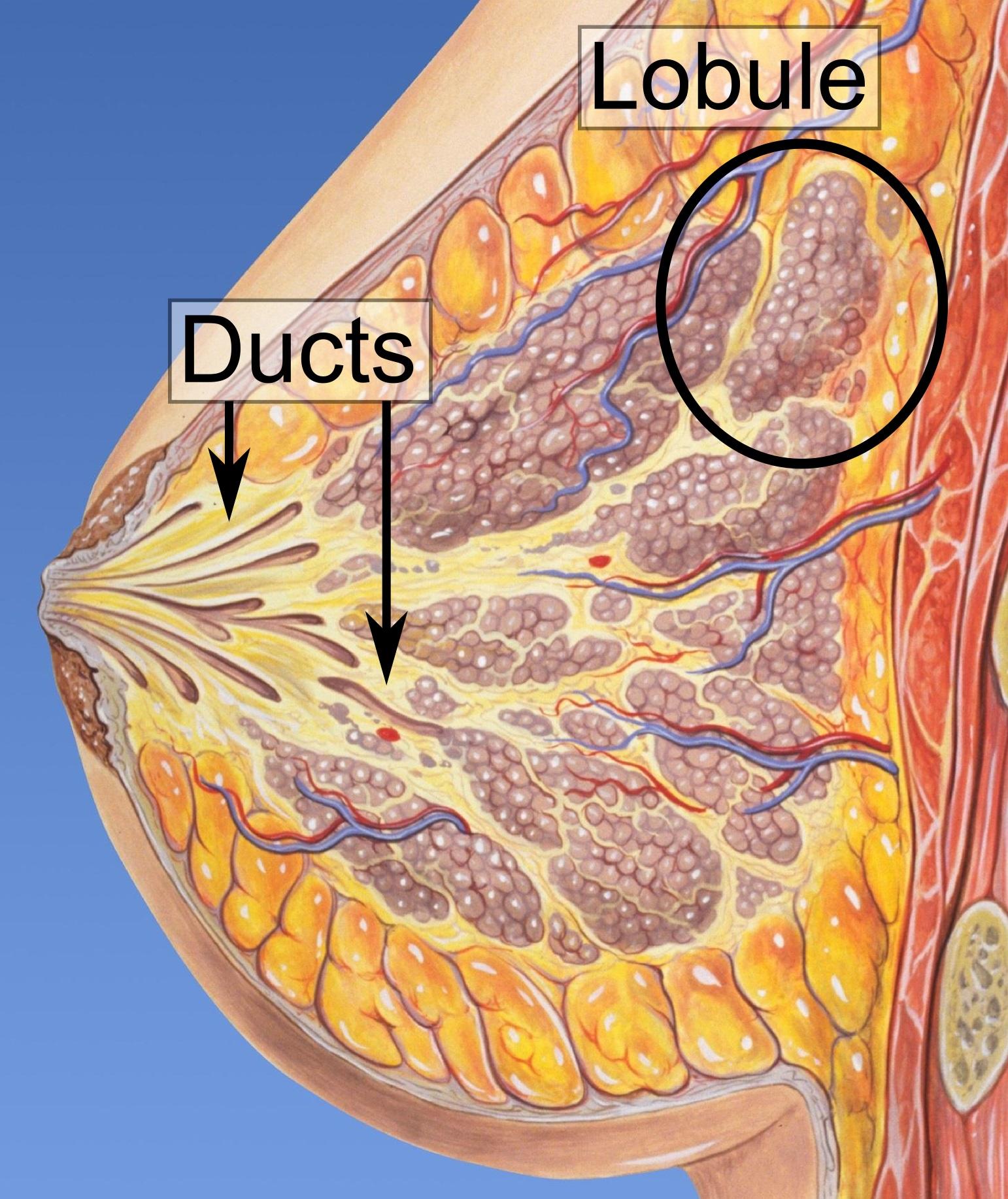 intraductal papilloma lumpectomy laryngeal papillomatosis larynx
