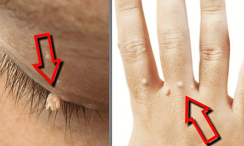 Hpv tedavisi elma sirkesi, Genital Siğil Elma Sirkesi Tedavisi enterobiasis y ascariasis