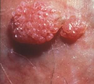 cum scoate un bărbat viermi? a infectat un tip cu negi genitale