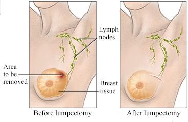 intraductal papilloma lumpectomy vierme de inimă înțepător ar