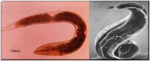 ce pregătire pentru copil de la viermi dysbiosis skin problems
