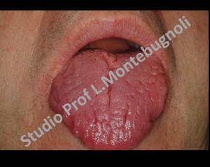 hpv e lingua bianca Viferon unguent pentru papiloame în locuri intime