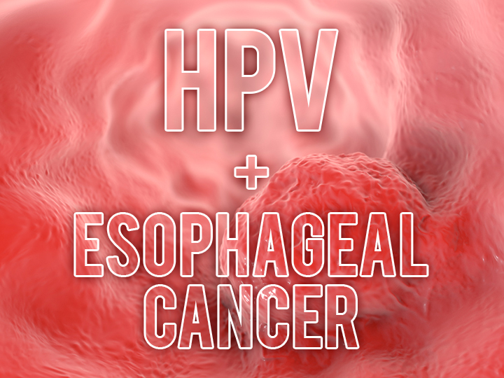 esophageal cancer and hpv