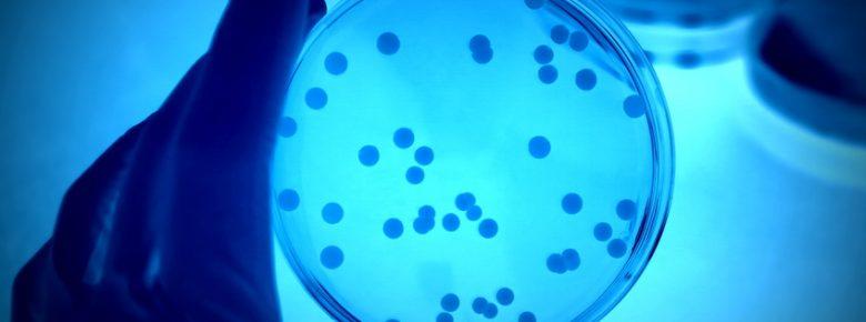 peritoneal cancer of unknown origin