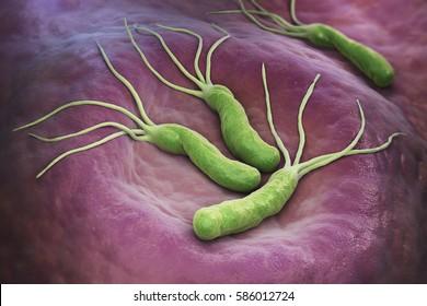 negi genitale, prevenirea lor viermi de pin după administrarea medicamentului