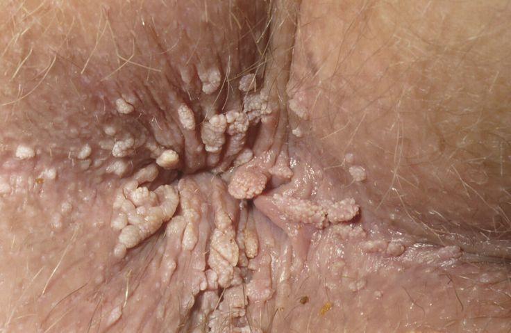 papiloame în vezica biliară ce să facă