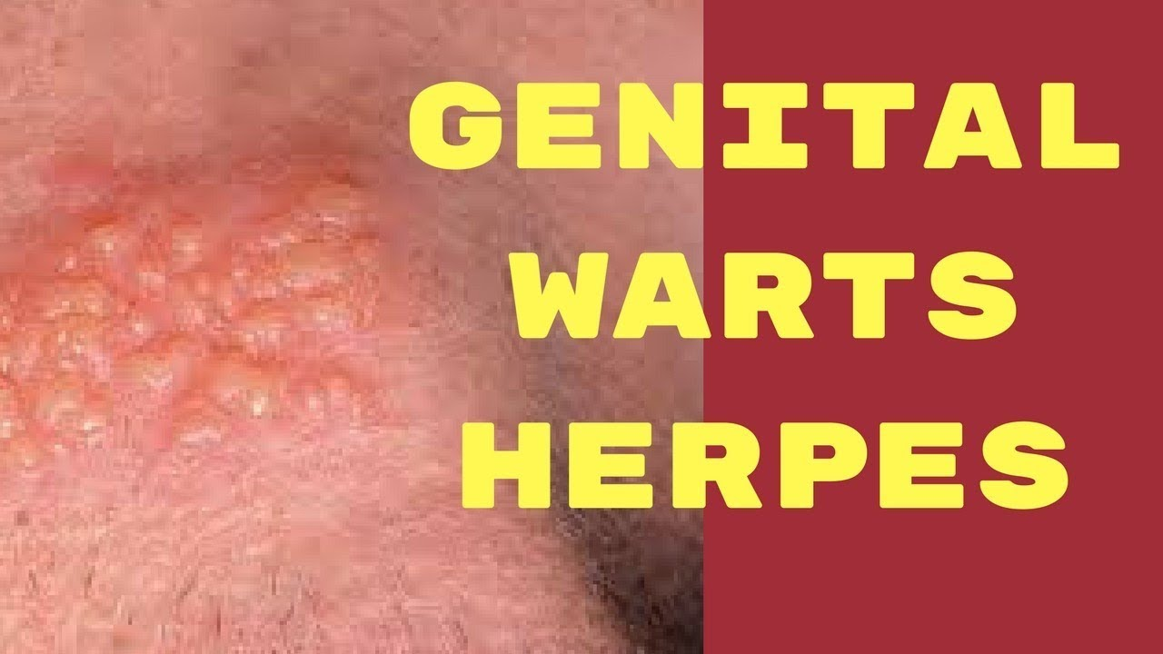 herpes hpv difference