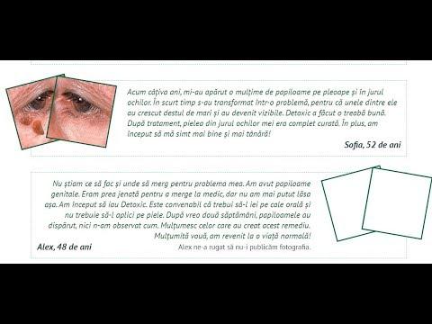 Pleoapa inferioară a papilomului - Papilom?? pe pleoapa inferioara | Forumul Medical ROmedic