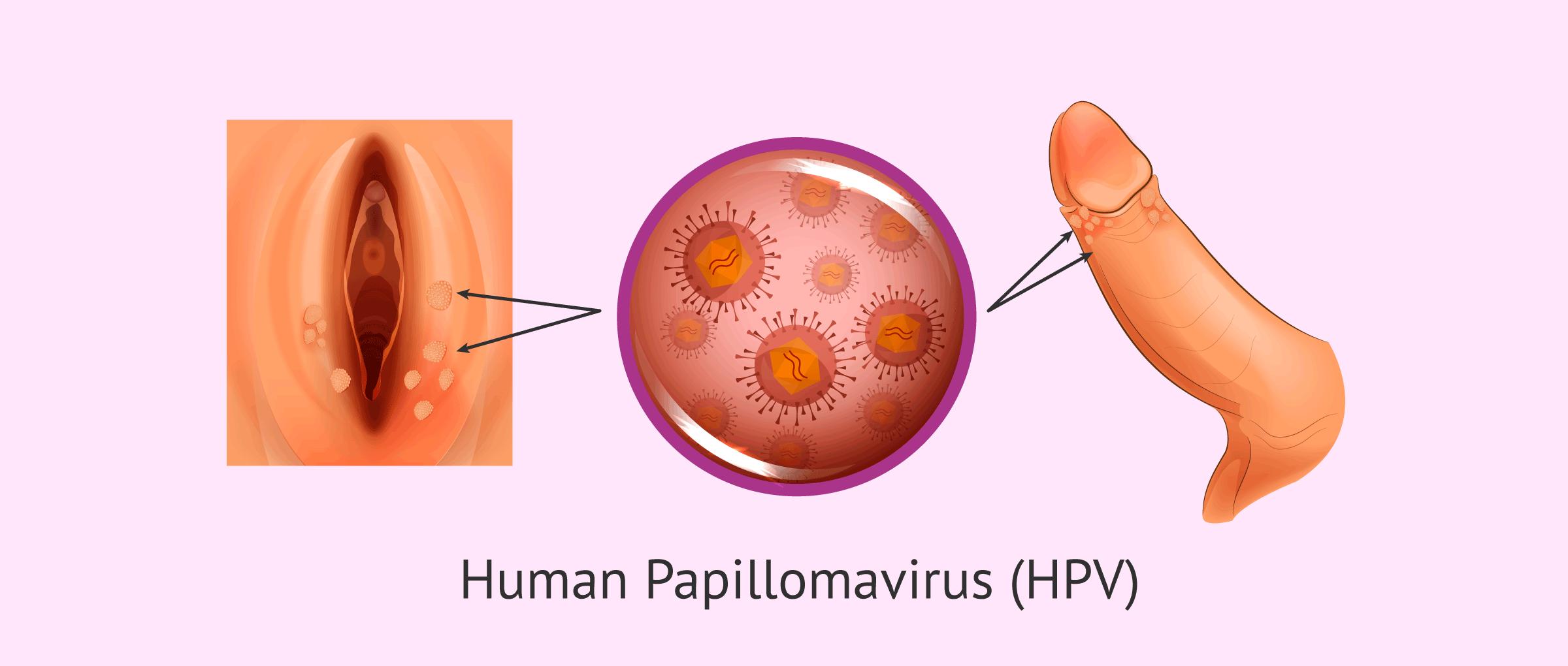 papillomas and hpv parazit de vierme cântec