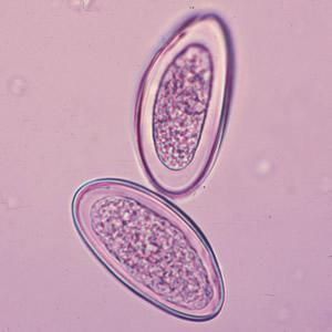 remedii naturiste impotriva parazitilor intestinali