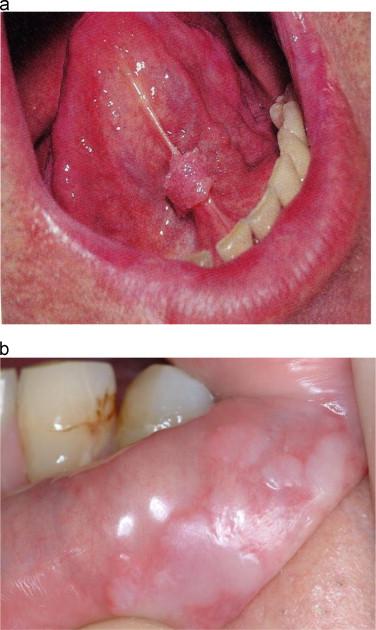 papilloma planoepitheliale leczenie