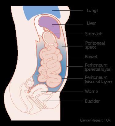 peritoneal cancer liver paraziți în industria alimentară