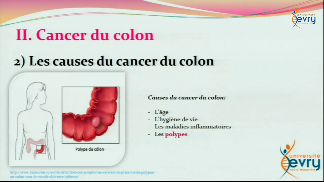 Colorectal viande rouge. Cancerul de gat